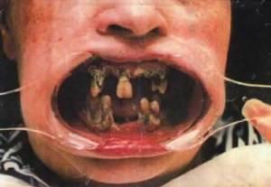 fula-tänder